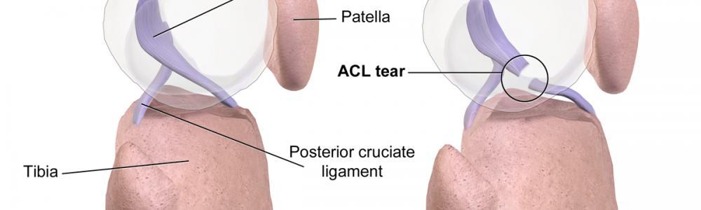 Instabilitati articulare - Leziunea de ligament incrucisat anterior