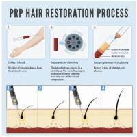 Dermatologie- Terapia PRP